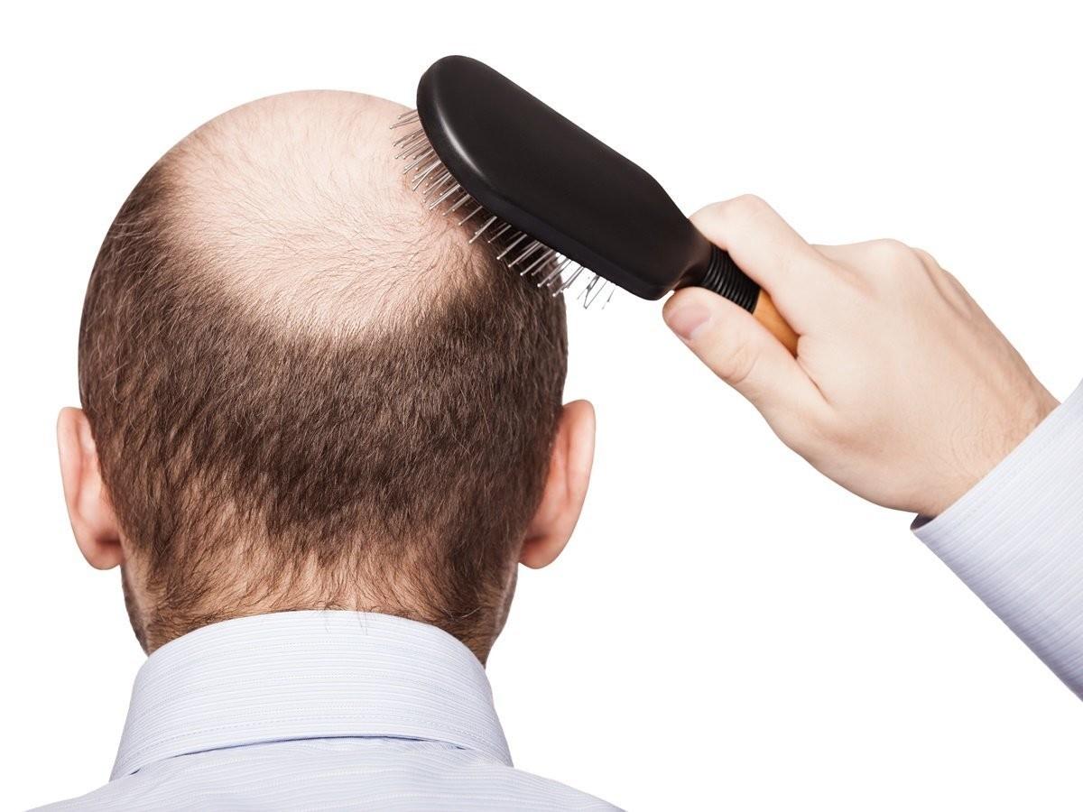 Überraschende Fakten über das menschliche Haar